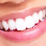 Dantų balinimo būdai